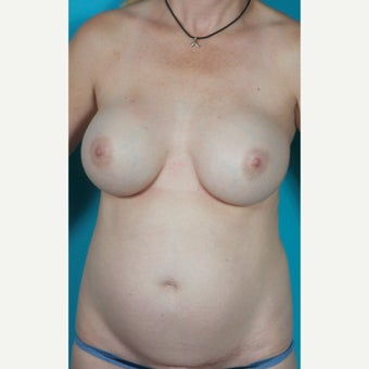 Painless/Drainless Abdominoplasty Technique, Bilateral Breast Implant Removal and Mastopexy, before 2514425