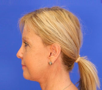 45-54 year old woman treated with Facelift 3476251