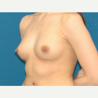 25 year old woman treated with Breast Augmentation before 3266450