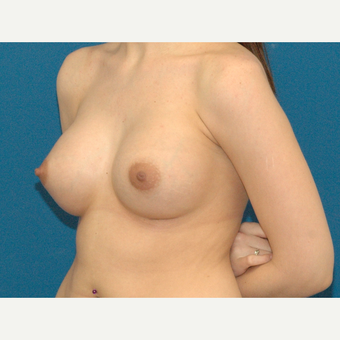 25 year old woman treated with Breast Augmentation after 3266450