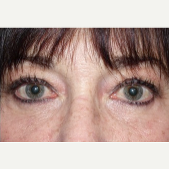 Lower blepharoplasty with fat repositioning for under eye bags after 2831787