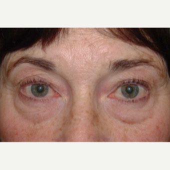 Lower blepharoplasty with fat repositioning for under eye bags before 2831787