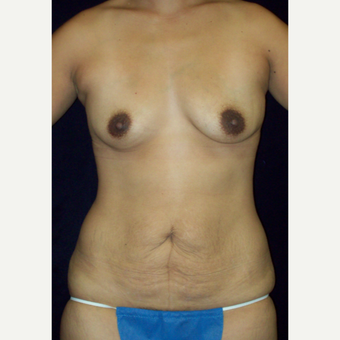 25-34 year old woman treated with Mommy Makeover, Fullt Tummy Tuck and Natrelle Silicone Implants before 3143027