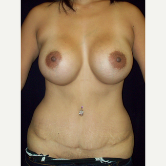 25-34 year old woman treated with Mommy Makeover, Fullt Tummy Tuck and Natrelle Silicone Implants after 3143027