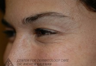Botox to Periorbital Wrinkles (Crows' Feet) after 315093