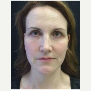 35-44 year old woman treated with Ultherapy after 3179906
