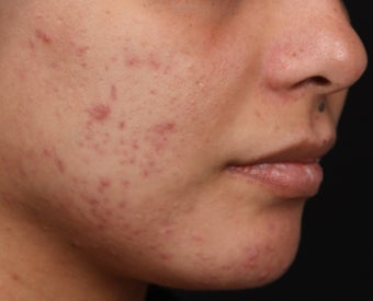 Isolaz for Acne before 1358924