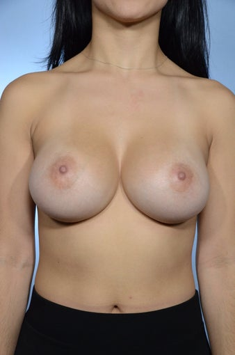 Breast Augmentation after 1460236