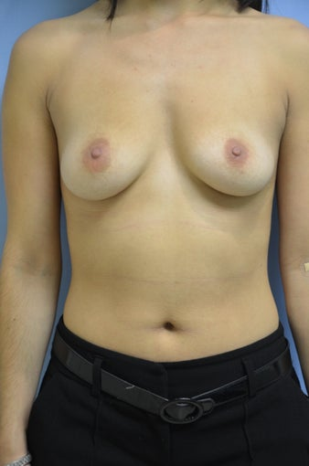 Breast Augmentation before 1460236