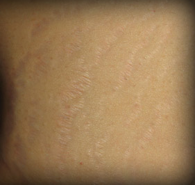 Stretch Marks Treatment after 1103966