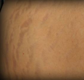 Stretch Marks Treatment before 1103966