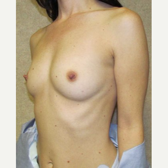 Woman treated with Sientra Breast Implants before 3163487