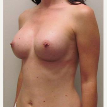 Woman treated with Sientra Breast Implants after 3163487