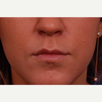 25-34 year old woman treated with Restylane after 3175036