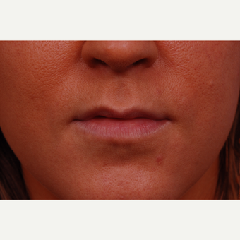 25-34 year old woman treated with Restylane before 3175036