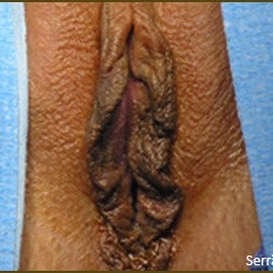 25-34 year old woman treated with Labiaplasty before 2149584