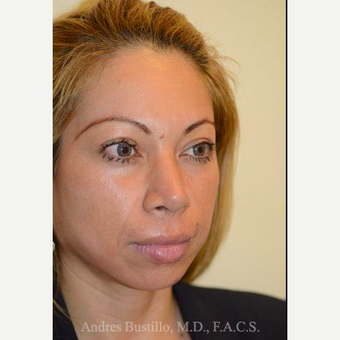 29 year old woman treated with Rhinoplasty after 3460924