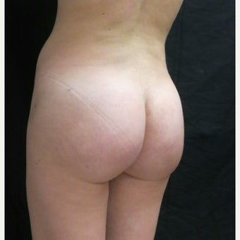 25-34 year old woman treated with Butt Augmentation after 2047008