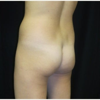 25-34 year old woman treated with Butt Augmentation before 2047008
