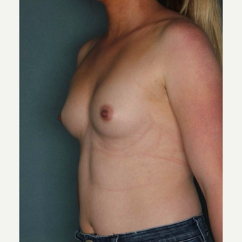 25-34 year old woman treated with Breast Augmentation before 3072500