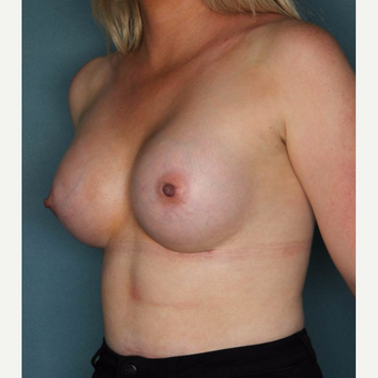 25-34 year old woman treated with Breast Augmentation after 3072500