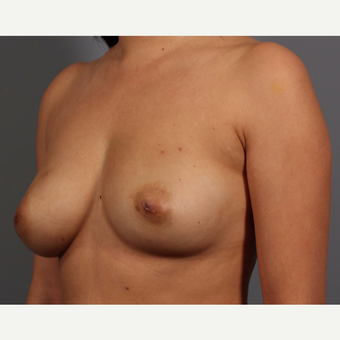 35-44 year old woman treated with Breast Reconstruction before 3657765