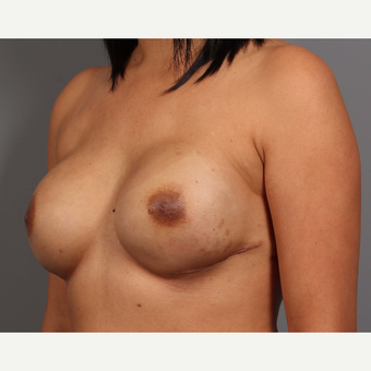 35-44 year old woman treated with Breast Reconstruction after 3657765