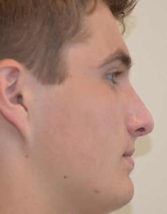 18-24 year old man treated with Rhinoplasty after 2765089