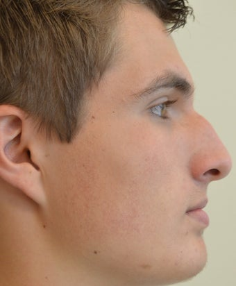 18-24 year old man treated with Rhinoplasty before 2765089