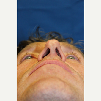 45-54 year old man treated with Rhinoplasty before 3643591