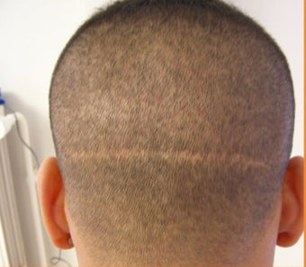 25-34 year old man with FUT (strip) scar treated with FUE Hair Transplant before 3120518