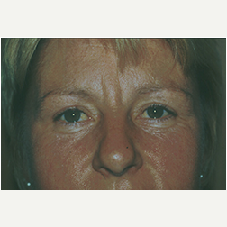 Eyelid Surgery after 3720115