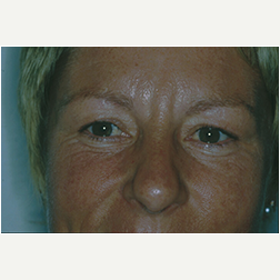 Eyelid Surgery before 3720115