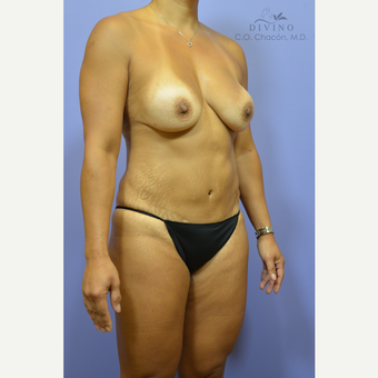 45-54 year old woman treated with Mommy Makeover before 3421573