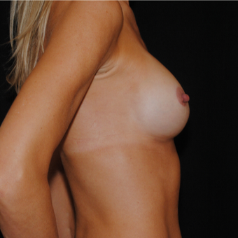 35-44 year old woman treated with Breast Implants after 3849535