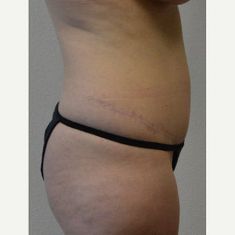 35-44 year old woman treated with Tummy Tuck 1940683