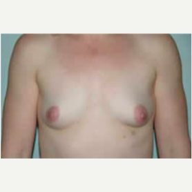 Breast Augmentation before 3058273