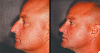 Septoplasty before 1263051