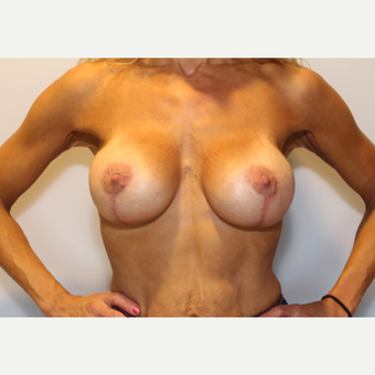 35-44 year old woman treated with Breast Lift with Implants after 3370709