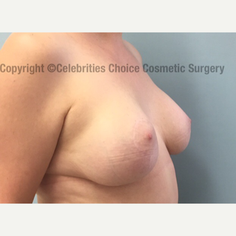 55-64 year old woman treated with Breast Implant Removal before 2710768