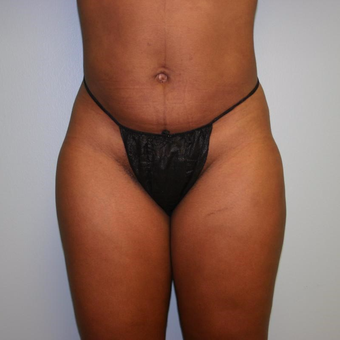 42 year old woman treated with Liposuction after 3442264