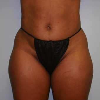42 year old woman treated with Liposuction before 3442264