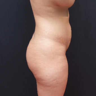 25-34 year old woman treated with Fat Transfer before 3267090
