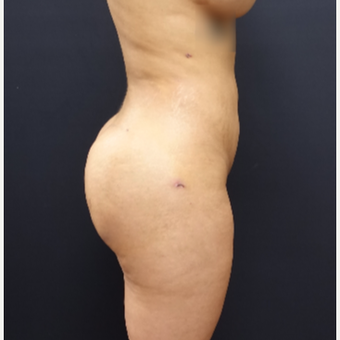 25-34 year old woman treated with Fat Transfer after 3267090