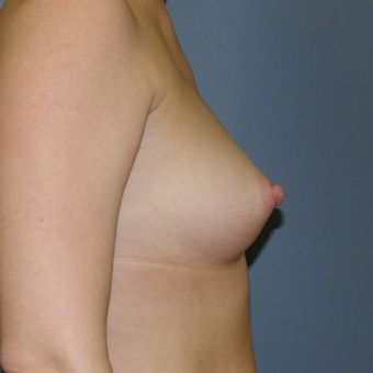 40 year old woman treated with Breast Implants before 3042618