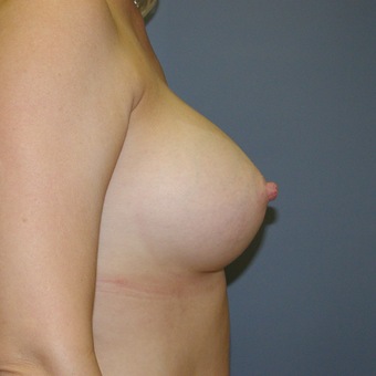 40 year old woman treated with Breast Implants after 3042618