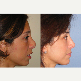 45-54 year old woman treated with Revision Rhinoplasty after 3521324
