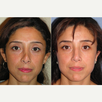 45-54 year old woman treated with Revision Rhinoplasty before 3521324