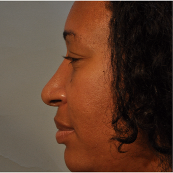 35-44 year old woman treated with Rhinoplasty after 3332951