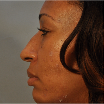 35-44 year old woman treated with Rhinoplasty before 3332951